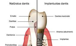 Kas yra dantų implantai?