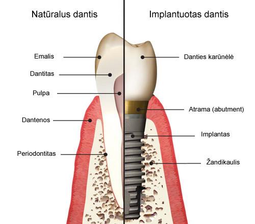 danties_implantas_1