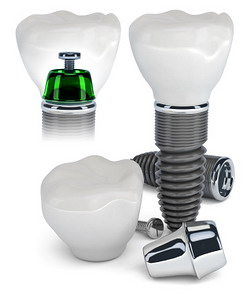 Dantų implantų istorija