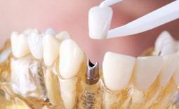 Dantu implantu privalumai