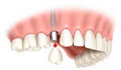 Vieno danties protezavimas