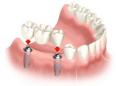 Kelių dantų protezavimas
