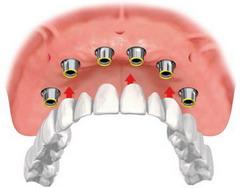 Visų dantų protezavimas