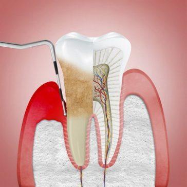 Periodontito (parodontozės) gydymas