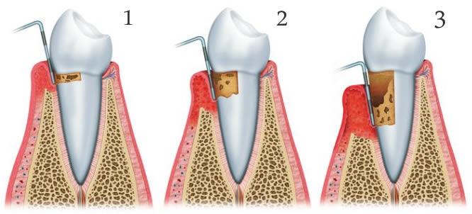 Periodontito stadijos