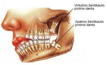 Protinių dantų traukimas (šalinimas)